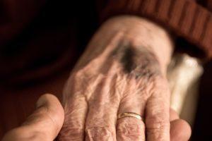 Seniors & Bruising: When Your Elderly Loved One Needs Help